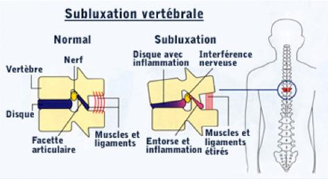 subluxation-site